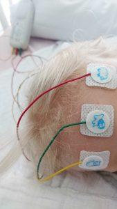 Mit Status Epilepticus ins Krankenhaus